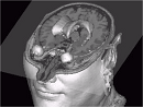 Interactive Visualization of 3D Segmented Images for Neurosurgical Planning