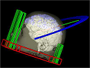 3D Stereotactic Neurosurgical Planner