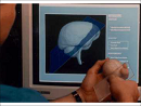 A Three-Dimensional User Interface for Neurosurgical Visualization