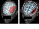 A Real-Time System for 3D Neurosurgical Planning